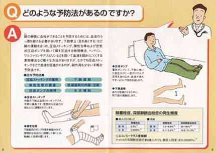 腹筋 開腹 手術